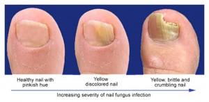 Best Otc Nail Fungal Treatment - Glamour Nail Salon