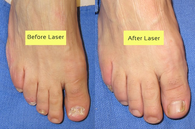 Cutera Laser for nail fungus before and after pictures - Toenail ...