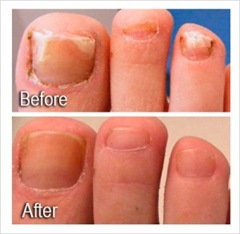 Toenail Fungus NYC Laser - Best price in NYC for laser nail fungus ...
