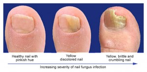 Laser for Nail Fungus NYC